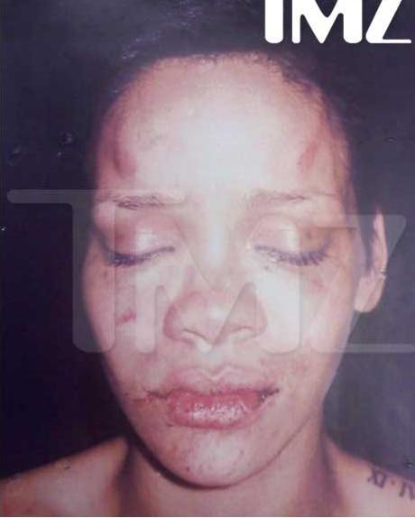 Rihanna Beat up from the Feet up.